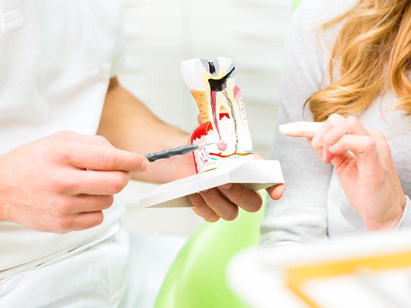 Wurzelbehandlung, Angstpatienten, Angst vorm Zahnarzt, Zahnerhaltung, Karies, Zahnersatz, Prophylaxe, Zahnarzt, Zahnheilkunde, Klammer, Brücke, Krone, Zahnarzt in Kerpen